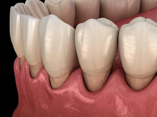 tratamente parodontoza Bucuresti @ clinica stomatologica DentArt
