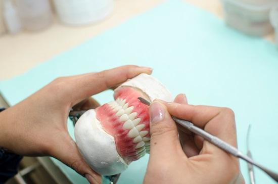 fatete dentare DentArt Consulting