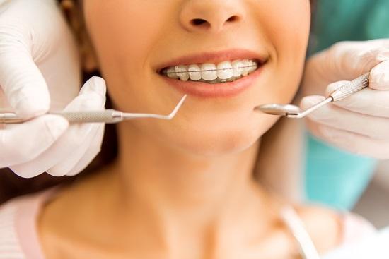aparate dentare Bucuresti @ clinica stomatologica DentArt