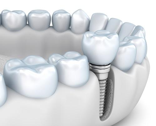 implanturi dentare Bucuresti @ DentArt