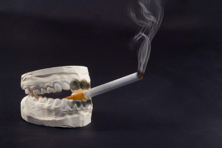 implanturi dentare si fumatul